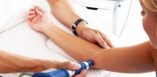 Therapie extracorporelle par ondes de choc tennis elbow