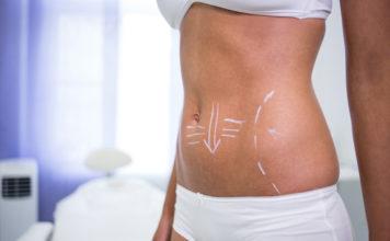 Les progrès chirurgicaux et les techniques actuelles de liposuccion